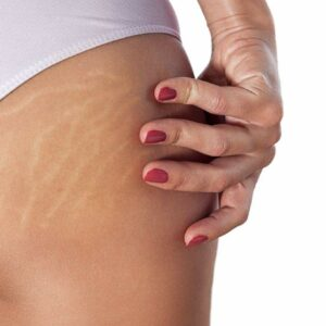 cosmetic_surgery_for_stretch_marks
